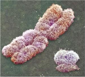 X-cromosome